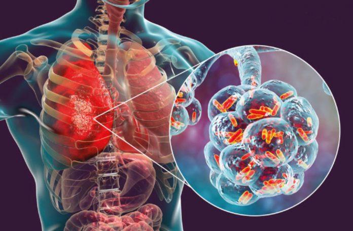 Un 12 de noviembre se declaró El Día Mundial de la Neumonía