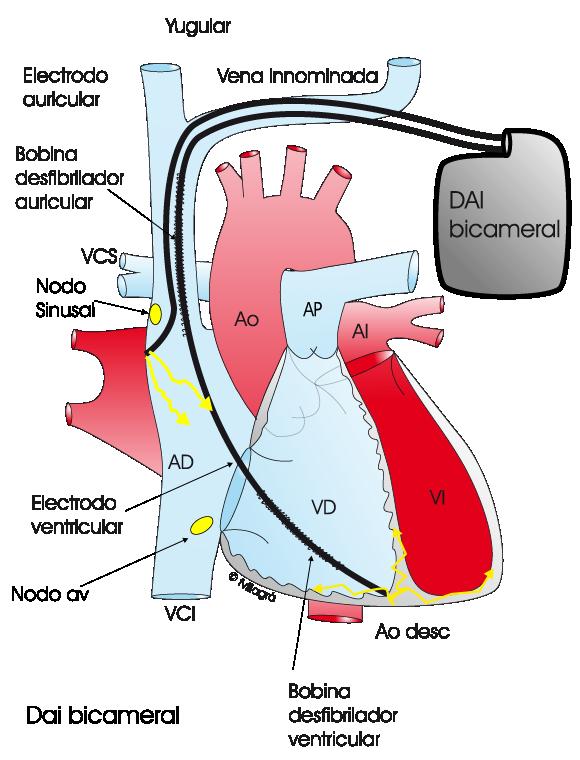 Marcapasos bicameral, cardiología, Medpass, historia del marcapasos, dispositivo de salud.